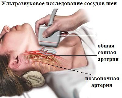 диагностика позвоночной артерии