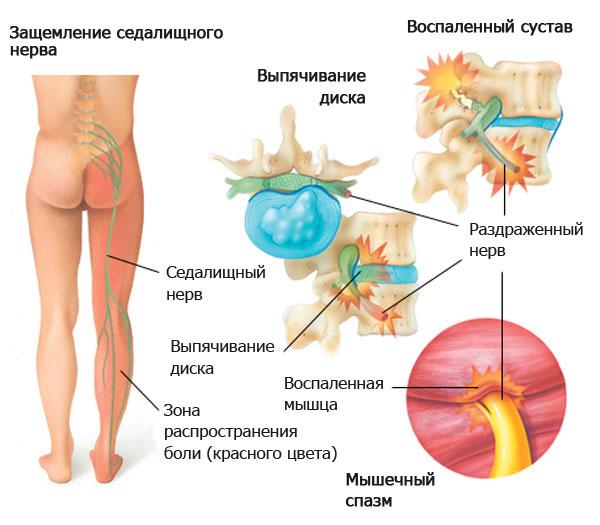 Тянущие боли в области поясницы внизу живота