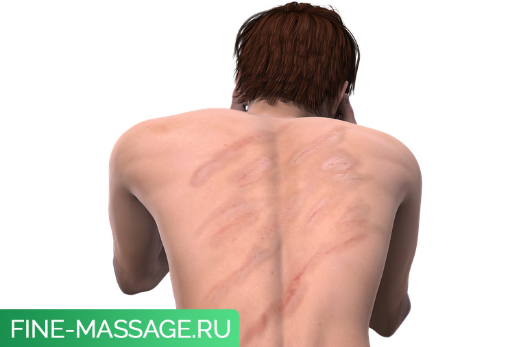 Миозит мышц спины