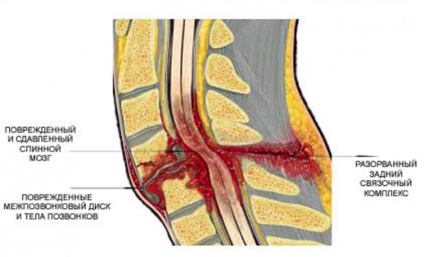 Перелом позвоночника в груди